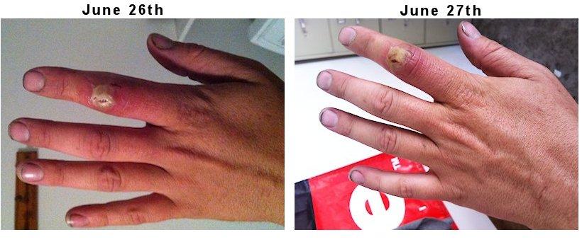 symptoms of mrsa staph infection